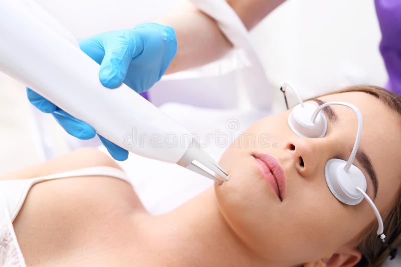 Removing acne scars by laser. stock images