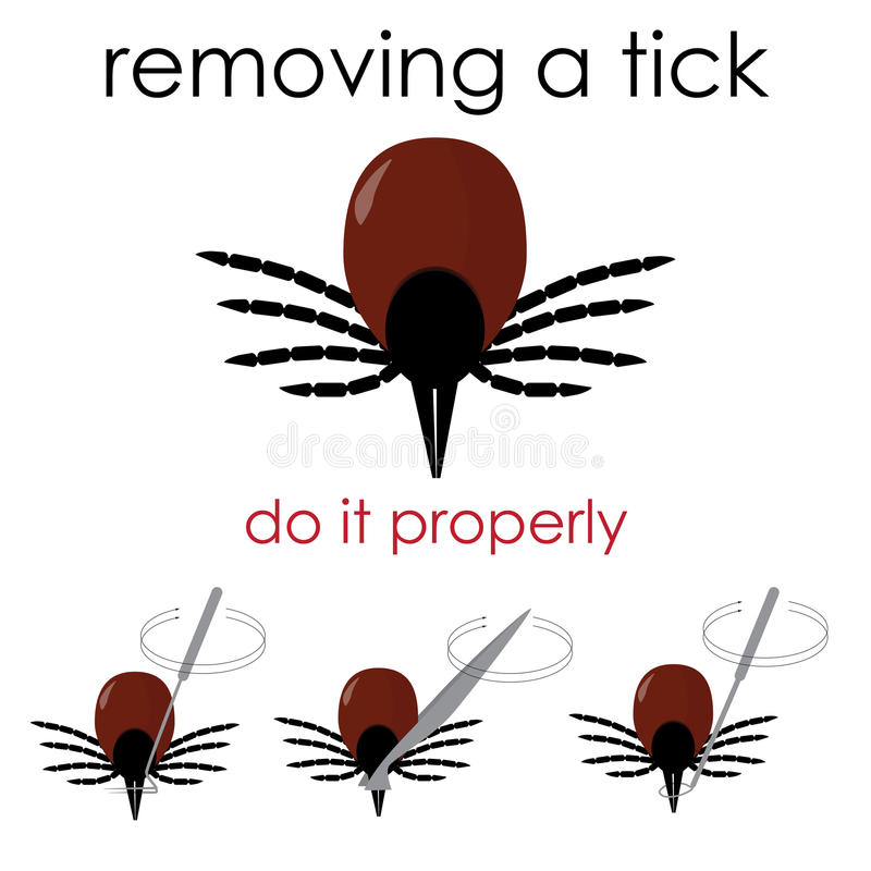 Removing a tick vector illustration