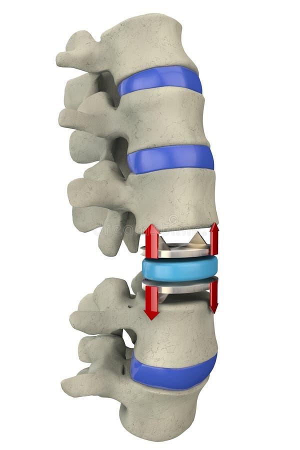 Remplacement artificiel de disque, opération chirurgicale d'épine illustration de vecteur