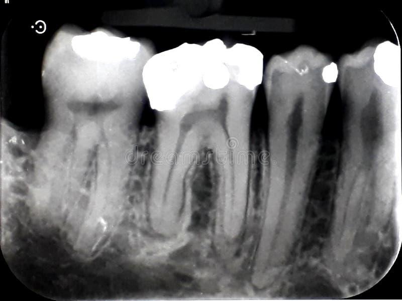 Remplissage d'amalgame dentaire de film de rayon X photos libres de droits