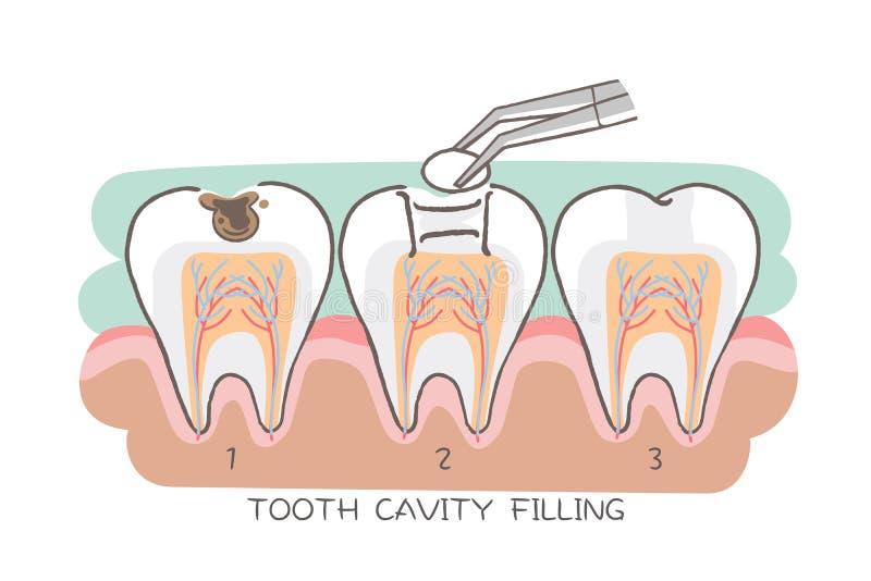 Remplissage de cavité de dent illustration stock
