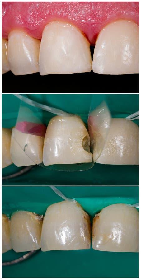 Remplissage dentaire de nanohybrid à extrémité élevé photo libre de droits