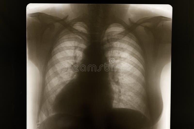 Rengen picture bone stock photography