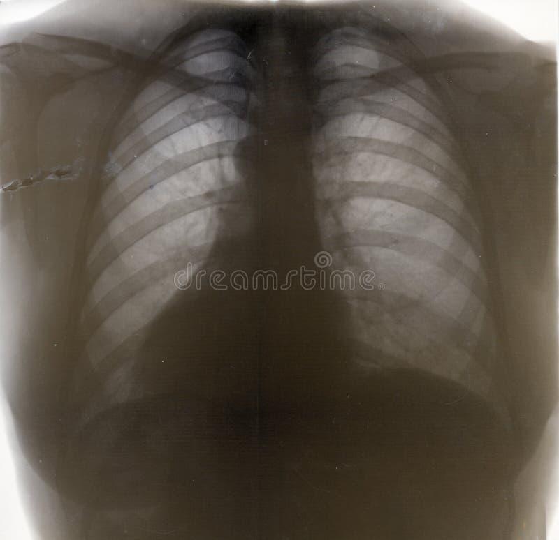 Rengen picture bone stock images