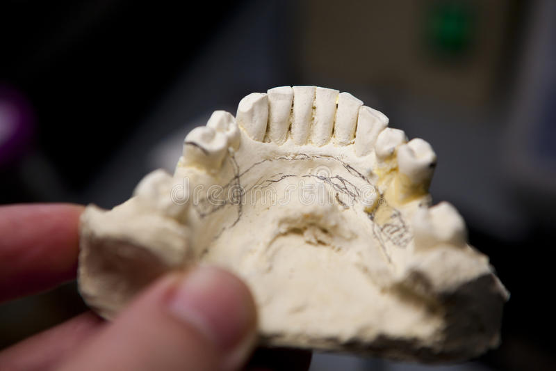 Reparación de los dientes humanos artificiales imágenes de archivo libres de regalías