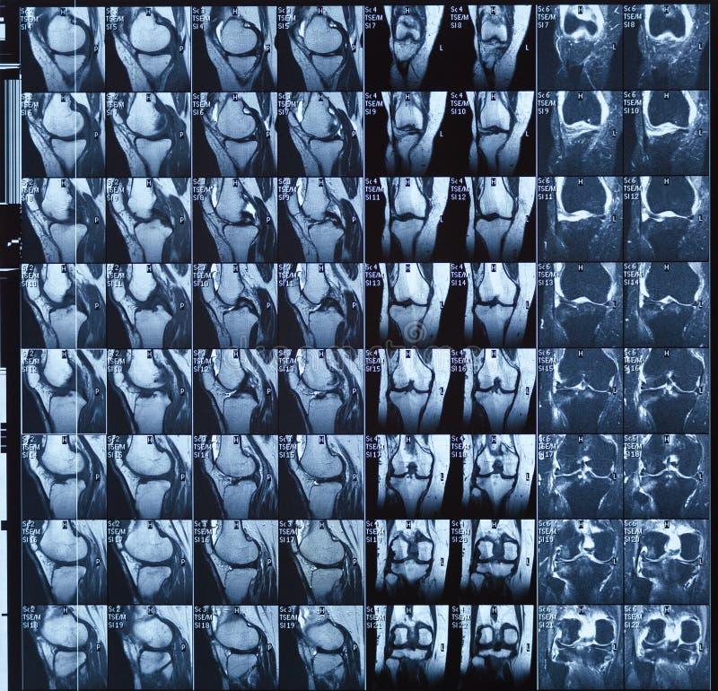 Représentation de résonance magnétique IRM d'articulation du genou humaine pour le diagnostic médical photos stock