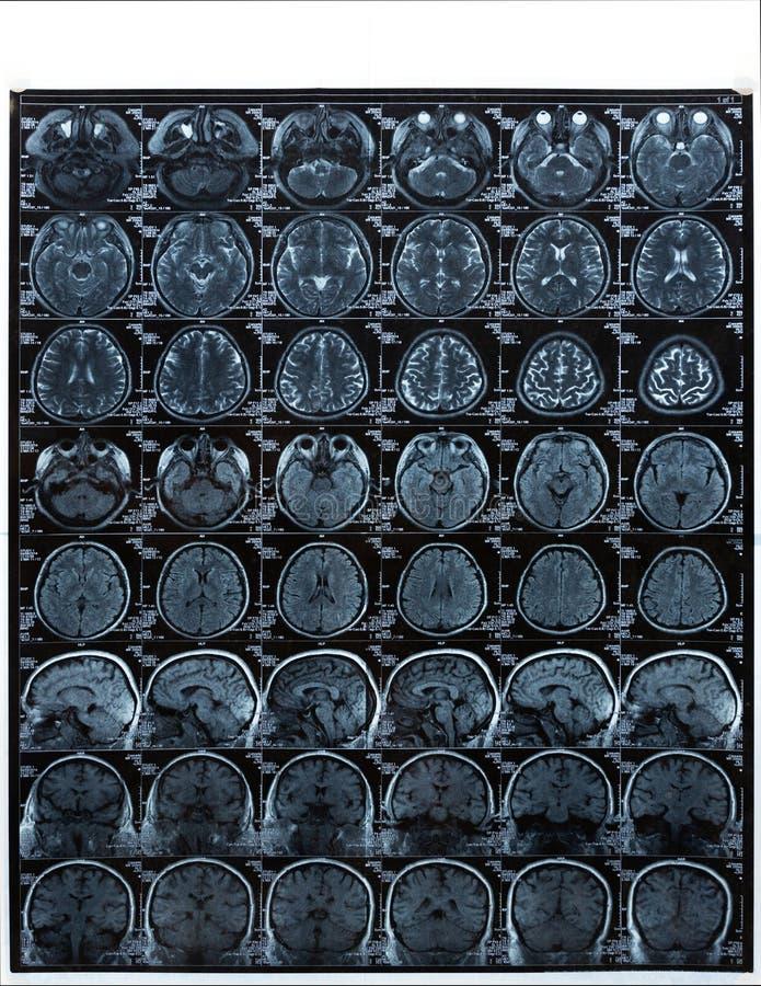 Représentation de résonance magnétique IRM de l'esprit humain pour le diagnostic médical photos stock