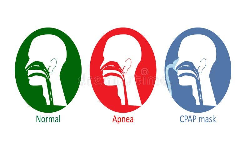 Respiration avec le processus d'apnea illustration libre de droits