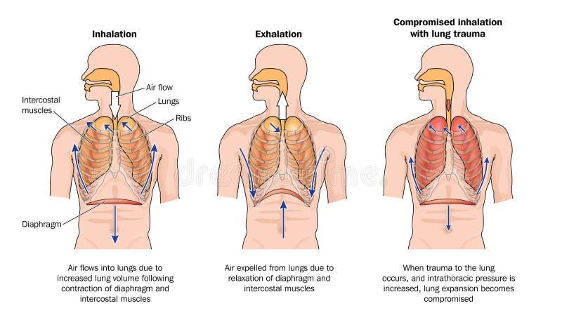 Respiration normale et compromise illustration libre de droits