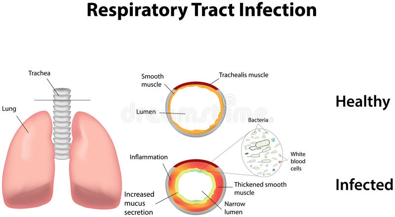Respiratory Tract Infection. An RTI stock illustration