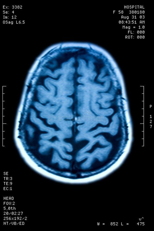 Ressonância do cérebro fotografia de stock