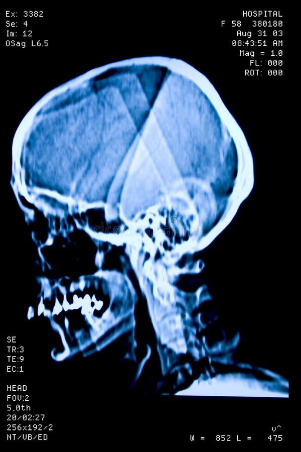 Ressonância do crânio foto de stock