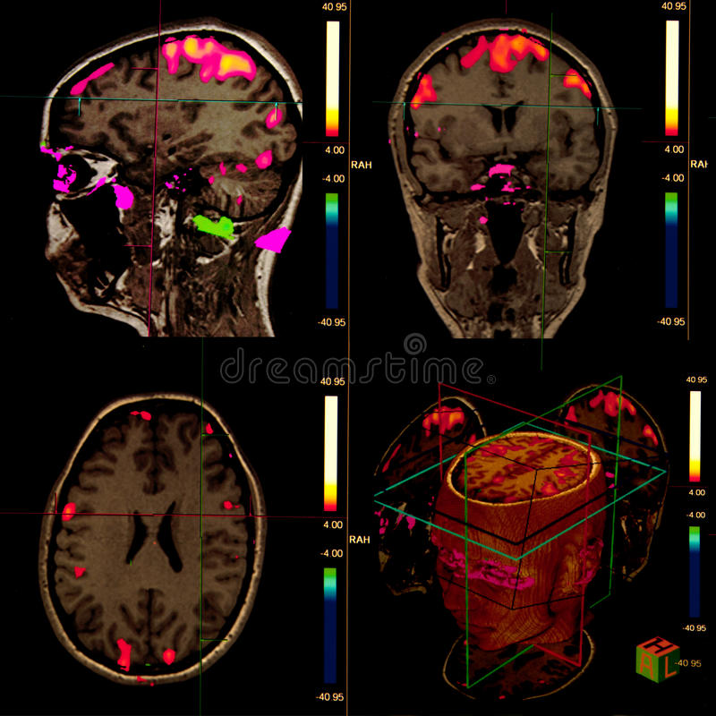Ressonância magnética do cérebro funcional fotografia de stock