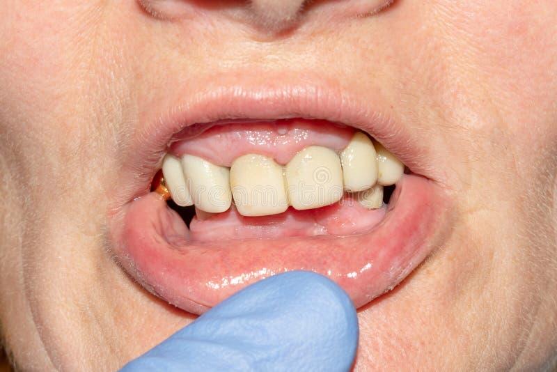 Restauratie van een rot tand rot tandclose-up Het concept therapeutische esthetische tandheelkunde in de tandkliniek stock afbeelding