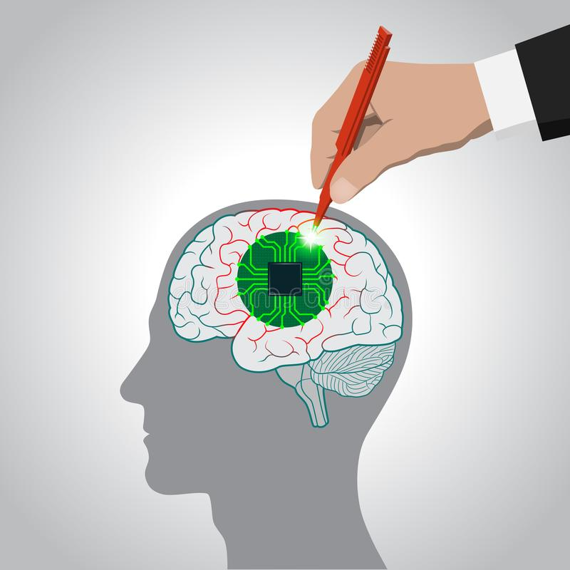 Restoration of brain functions, prosthetics of affected areas, mind, consciousness, memory, surgical treatment brain diseases. Restoration of brain functions stock illustration