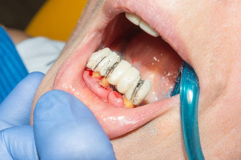 Restoration of a rotten tooth decayed tooth close-up. The concept of therapeutic aesthetic dentistry in the dental clinic. Restoration of a rotten tooth decayed stock photos