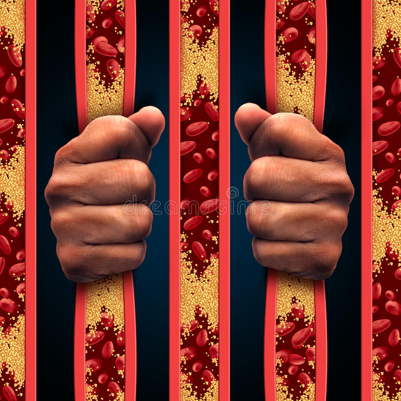 Restricted By Cholesterol. As a person behind prison bars made of clogged artery and atherosclerosis disease arteries as a medical concept with blood cells that royalty free illustration