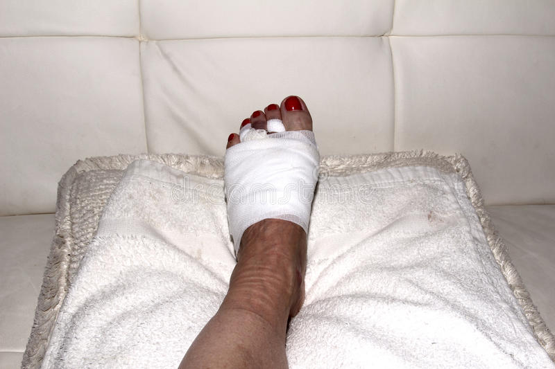Result of Morton's neuroma surgery on a woman's foot. Foot after Morton's neuroma surgery royalty free stock photo