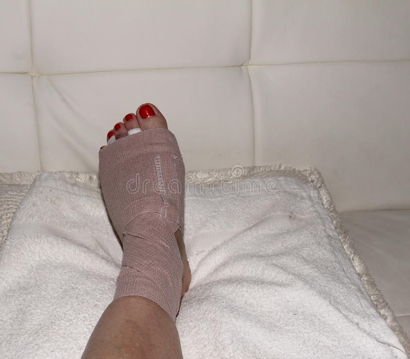 Result of Morton's neuroma surgery on a woman's foot. Foot after Morton's neuroma surgery royalty free stock image