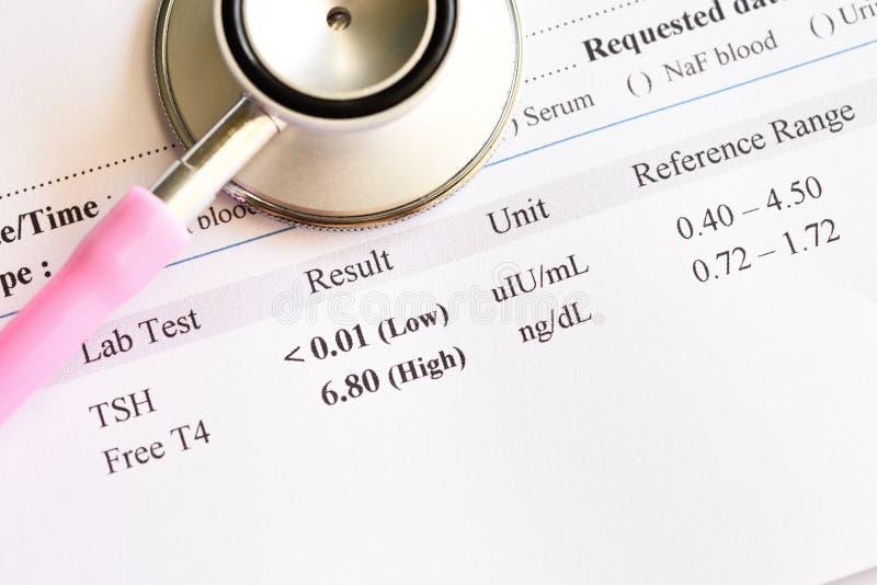 Resultado da análise anormal da hormona de tiroide imagens de stock royalty free