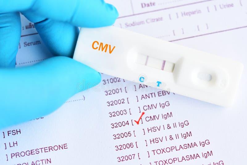 Resultado da análise do positivo do Cytomegalovirus imagem de stock royalty free