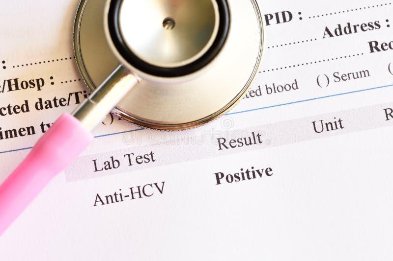 Resultado da análise do positivo do vírus da hepatite C fotos de stock