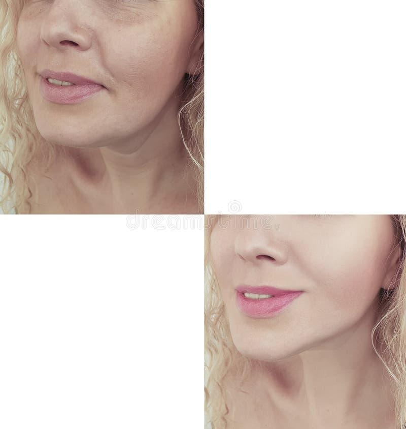 resultado de la barbilla doble de la mujer antes y despu?s del efecto de los procedimientos fotos de archivo