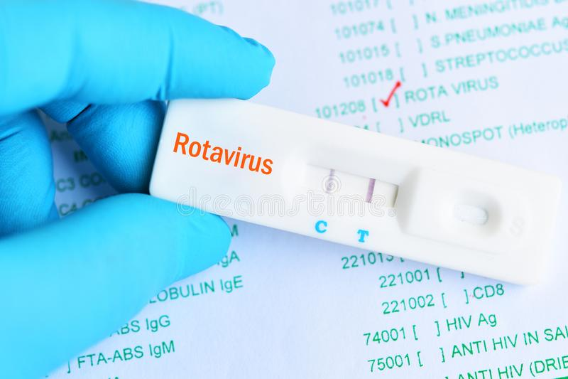 Resultado de la prueba positivo del Rotavirus usando el casete rápido de la prueba foto de archivo libre de regalías