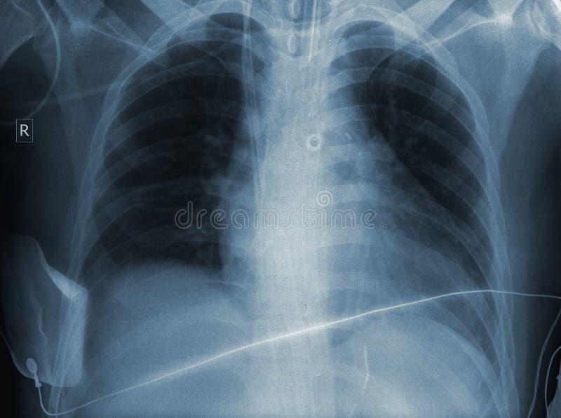 Resultado de um exame de raio X imagens de stock royalty free