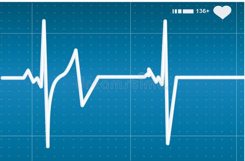 Resultado del pulso ilustración del vector