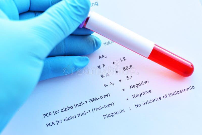 Resultado do laboratório do teste de datilografia da hemoglobina fotos de stock