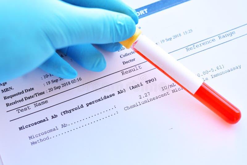 Resultado do laboratório do teste microsomal do anticorpo fotografia de stock royalty free