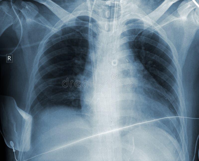 Resultado do radiograma da caixa paciente foto de stock