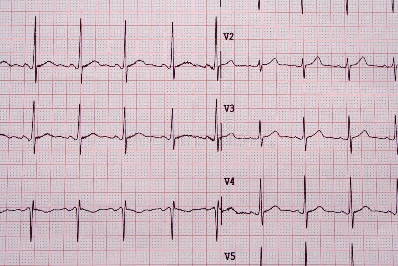 Resultados de EKG imagens de stock royalty free