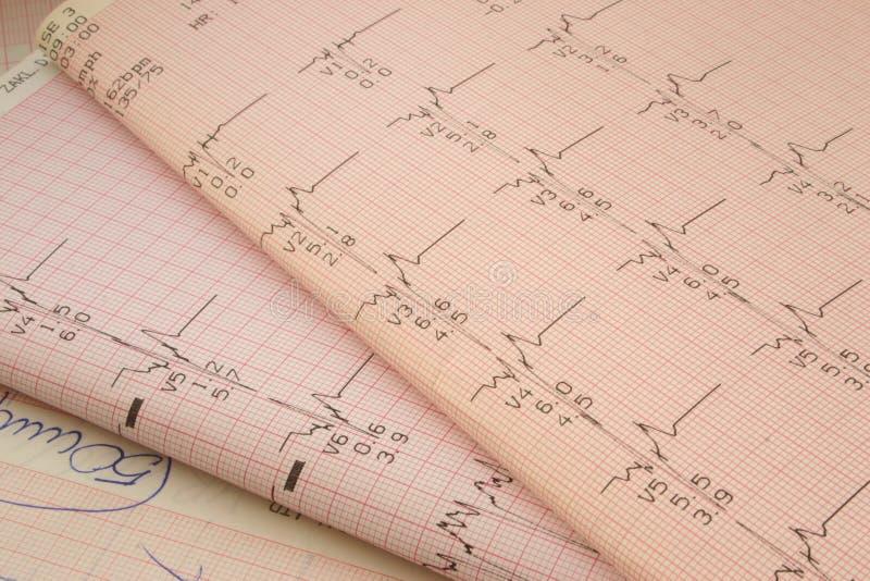 Resultados de la prueba cardiológicos #2 imágenes de archivo libres de regalías