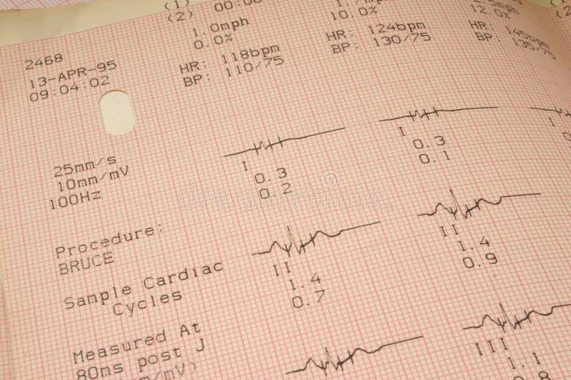 Resultados de la prueba cardiológicos fotos de archivo libres de regalías