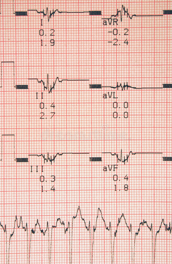 Resultados de las pruebas cardiológicos foto de archivo