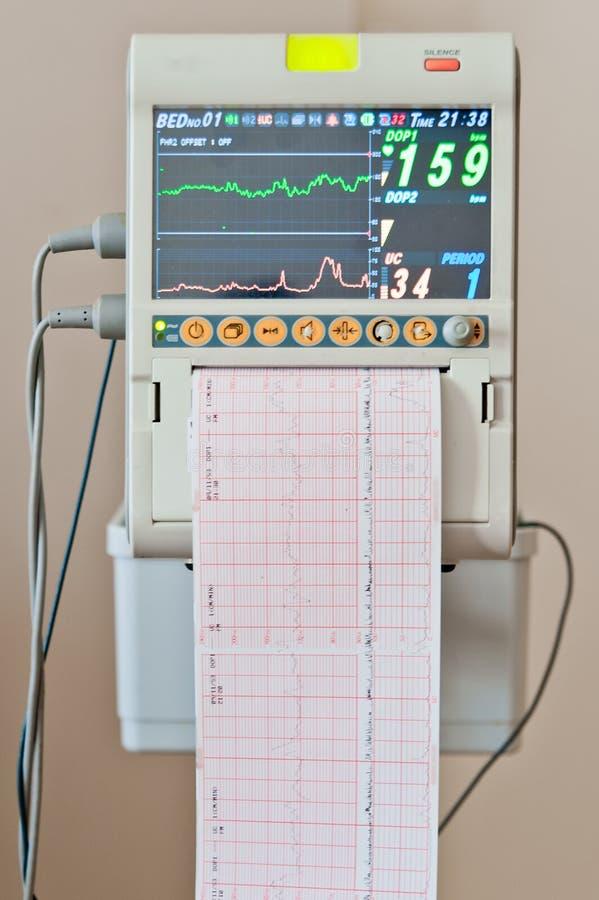 Resultados del pulso del corazón de Ekg de la prueba del cardiograma fotografía de archivo
