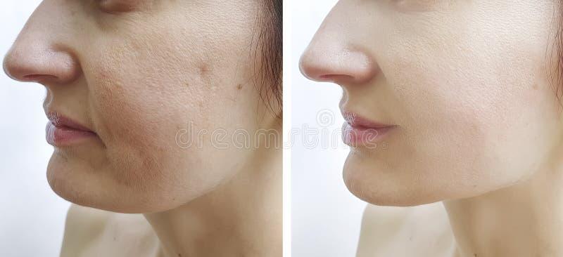 Resultat för korrigering för cosmetology för behandling för föryngring för kvinnaframsidaskrynklor före och efter fotografering för bildbyråer