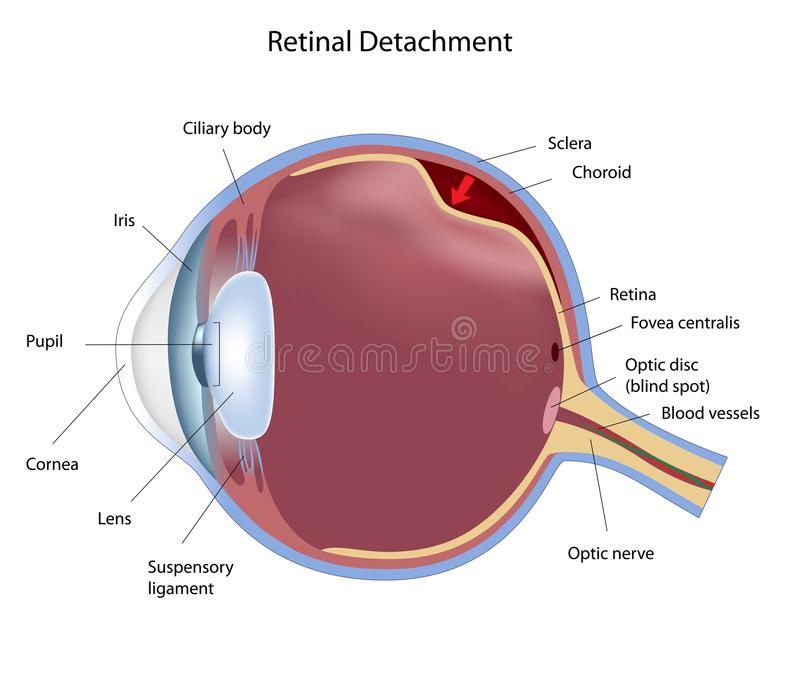 Retinal detachment. A common and serious eye disease, eps8 royalty free illustration