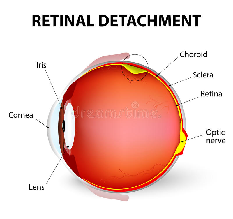 Retinal detachment. Vector diagram. Retinal detachment is an eye disease in which the part containing the optic nerve is removed from its usual position at the vector illustration