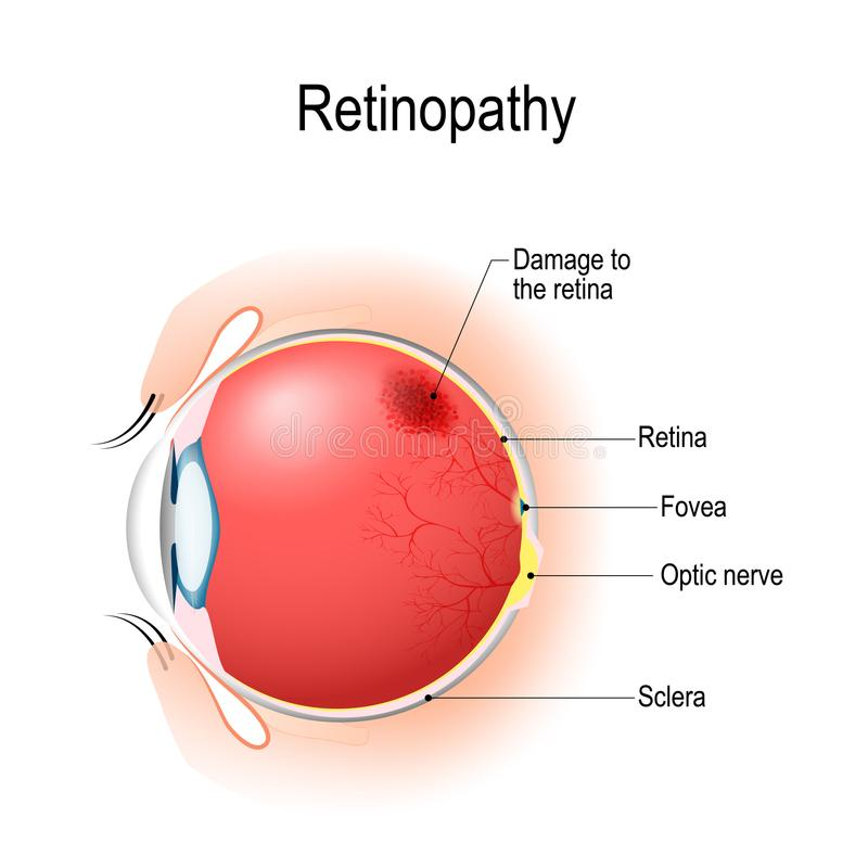 Retinopathy. Vertical section of the eye and eyelids with damage. Retinopathy is damage to the retina of the eyes, which cause vision impairment. Anatomy of the vector illustration