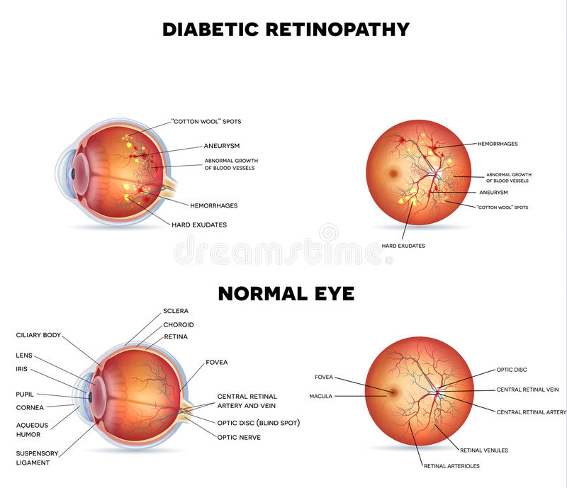 Retinopathy diabétique illustration stock