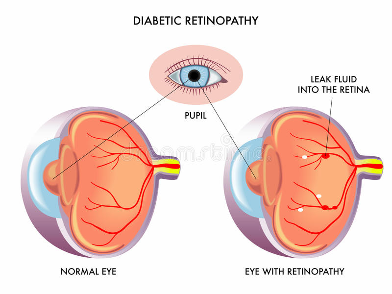 Retinopatia diabetica illustrazione vettoriale