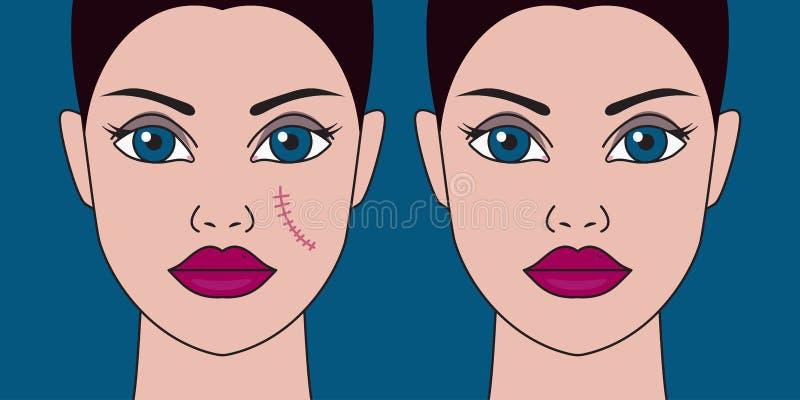 Retiro de cicatrices de la cara stock de ilustración