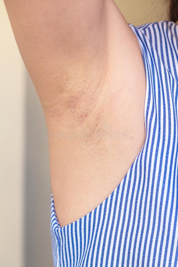 Retiro del pelo de axila con la onda de radio, señora Beauty Surgery Technology fotografía de archivo libre de regalías