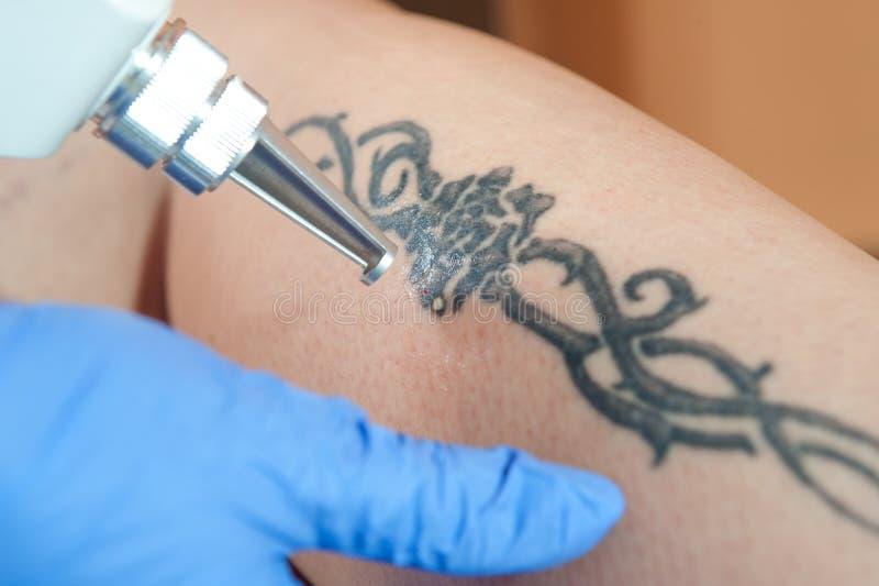 Retiro del tatuaje foto de archivo