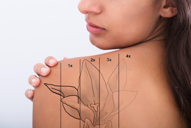 Retrait de tatouage sur l'épaule du ` s de femme photographie stock libre de droits