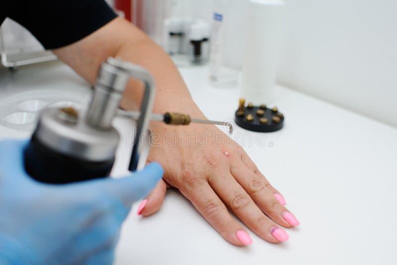 Retrait des verrues dans la clinique de dermatologie images stock