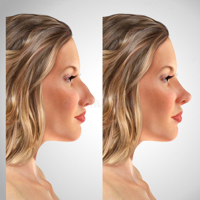 Retrato comparativo de una mujer joven 3d antes y después del rhinop stock de ilustración